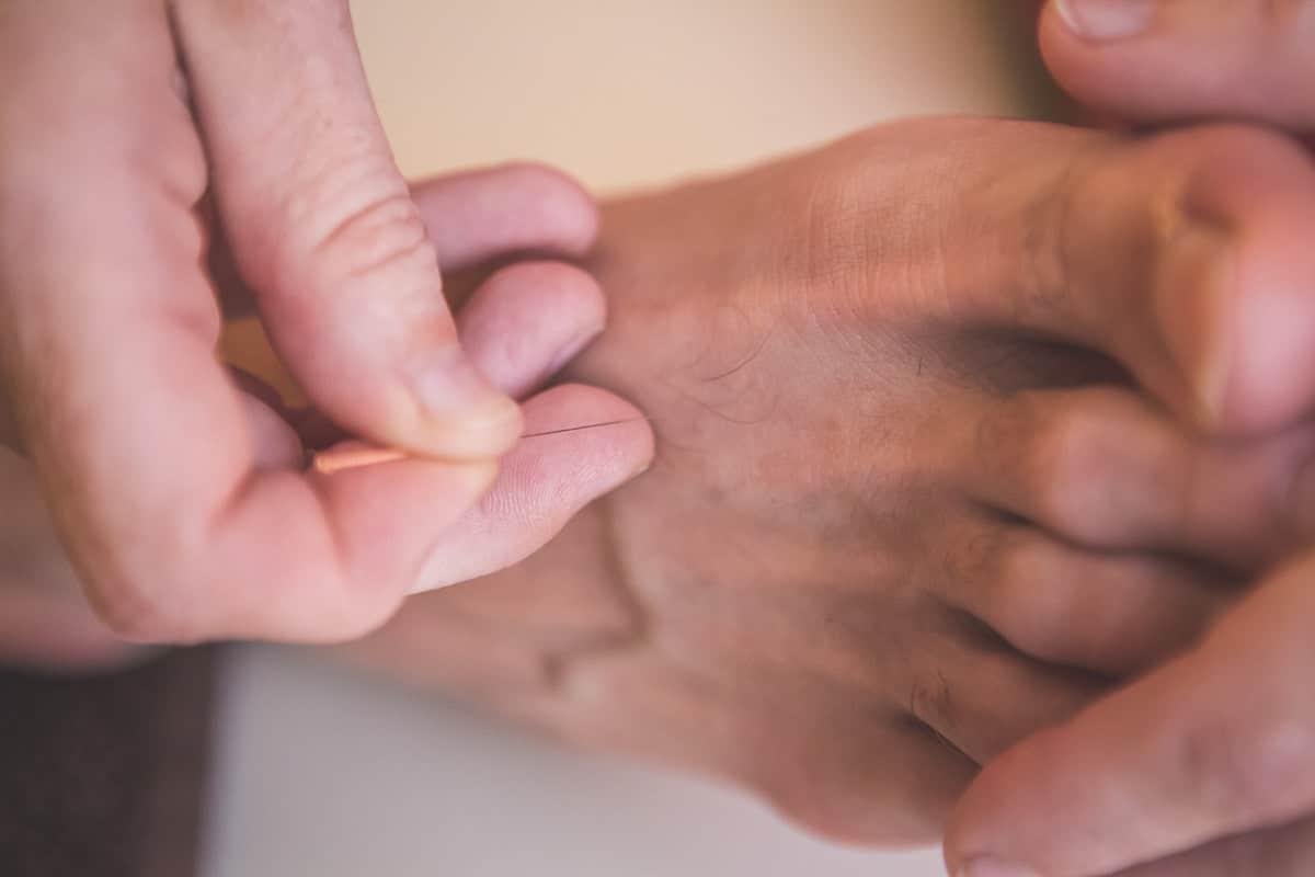 23-site-photo-acupuncteur-toulouse